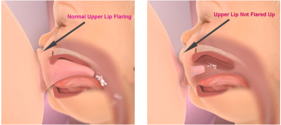 Breastfeeding Difficulties Due to Lip Tie